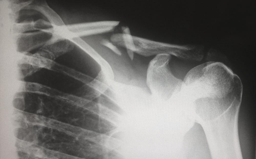 Har jeg brug for en røntgenundersøgelse?